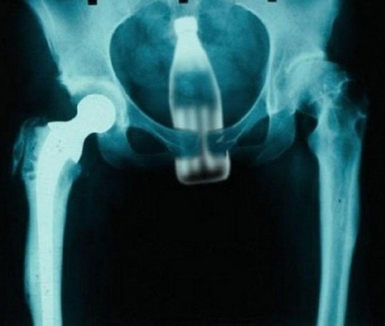 Bad Moments For X-Rays