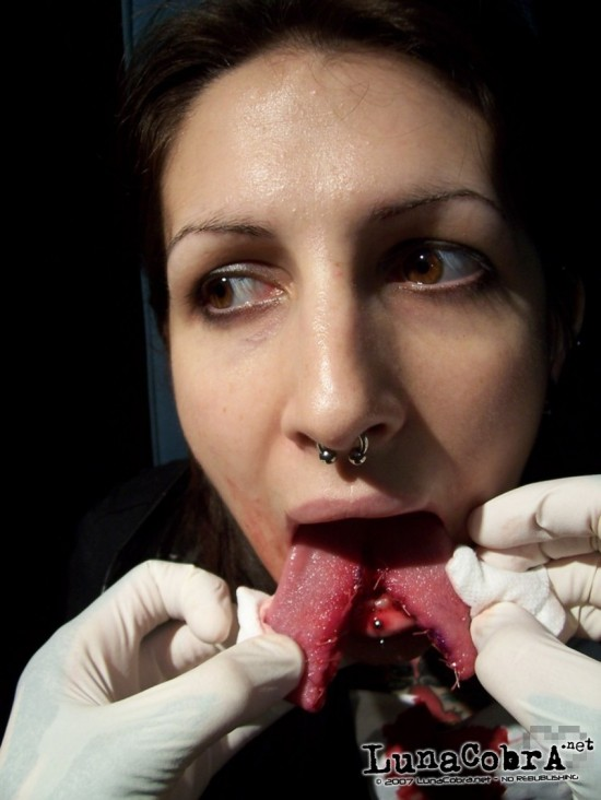 Tongue Splitting